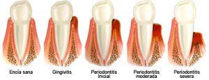 piorrea-diente