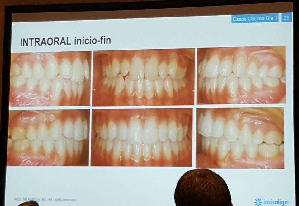 Certificación oficial en ortodoncia invisible Invisalign España