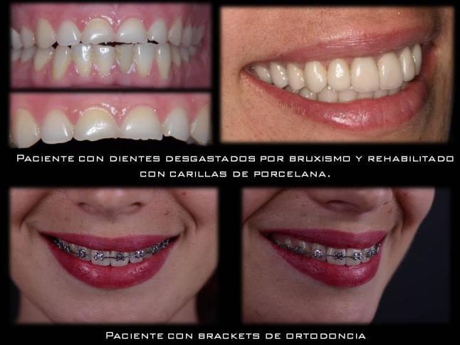 Últimos avances en odontología – La Provincia
