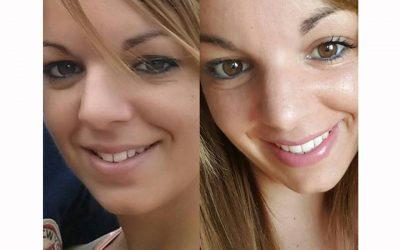 Antes y después, braquets