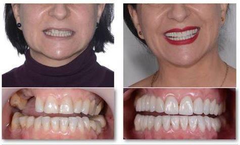 Tratamientos dentales de alta complejidad, Canarias 7