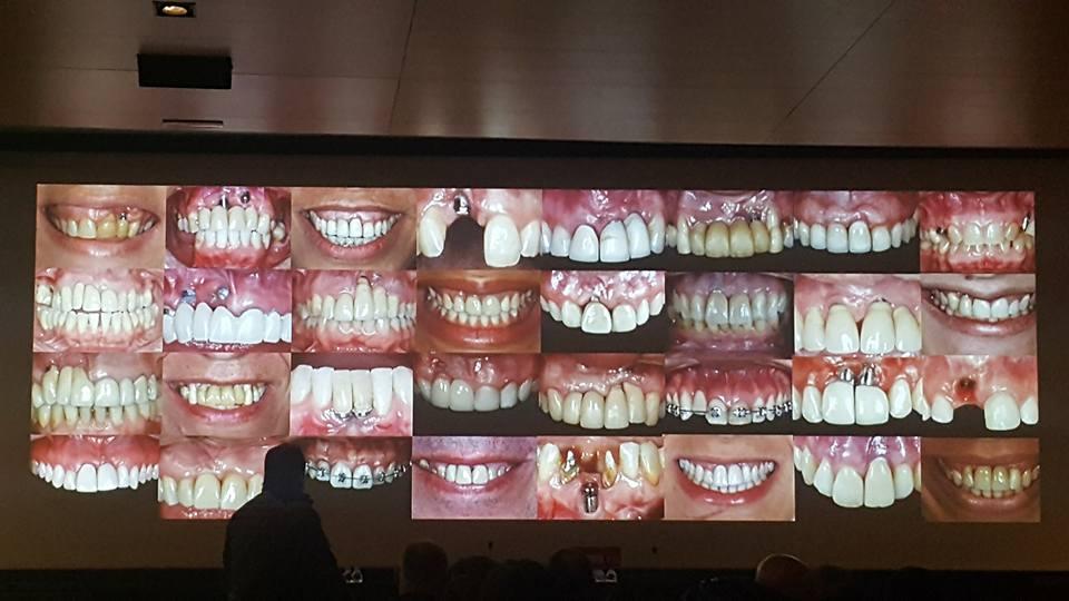 Restauraciones estéticas sobre dientes e implantes y actualización en el manejo de tejidos blandos