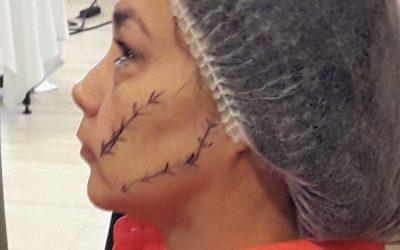Formación en estética facial de la compañia MesoEstetic Lab